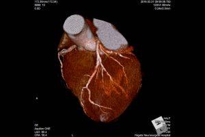 冠動脈3DCTA